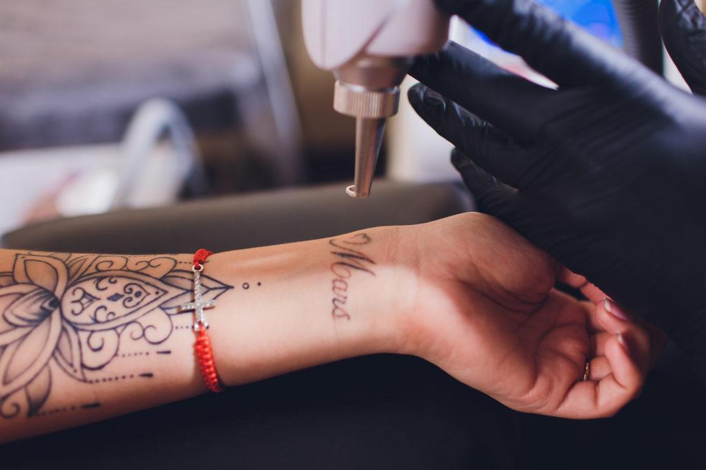tempi e prezzi per rimuovere un tatuaggio